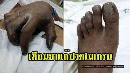 เตือนคนมีโรคประจำตัวกินยาเออร์กอต แก้ไมเกรน เสี่ยงหัวใจวาย มือเท้าตาย ต้องตัดทิ้ง