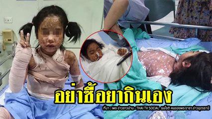 อุทาหรณ์ ผู้ปกครองซื้อยาให้เด็กกินเอง เกิดแพ้หนัก ผื่นขึ้นลามทั้งตัว ส่งห้องไอซียู