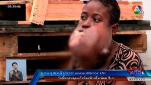 ปาฏิหาริย์! สาวคองโกผ่าตัดเนื้องอกช่องปากขนาดเท่าลูกฟุตบอล